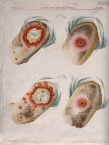 Variolation v. Vaccination by George Kirtland